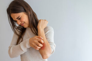 5 Common Eczema Management Mistakes—Why Moisturising Alone isn't Enough!